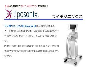 Liposonix ライポソニックスを活用してみましょう